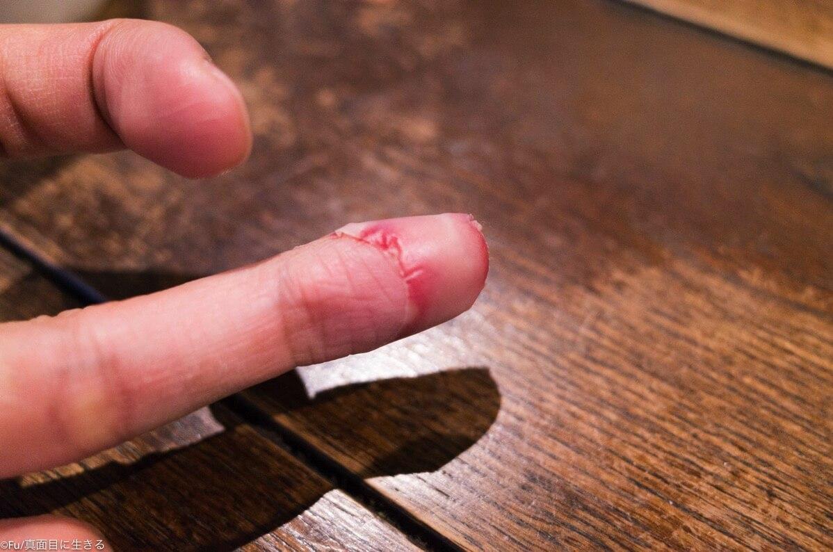 指きっちゃいました